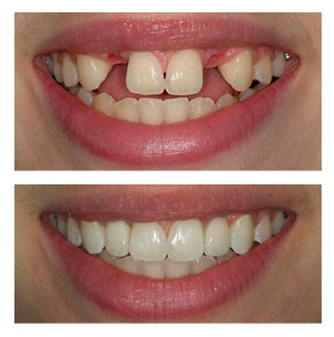 ایمپلنت دندان پیش