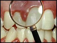 جرم دندان و التهاب لثه