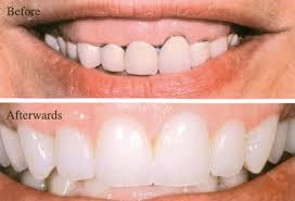 تعویض روکش دندان