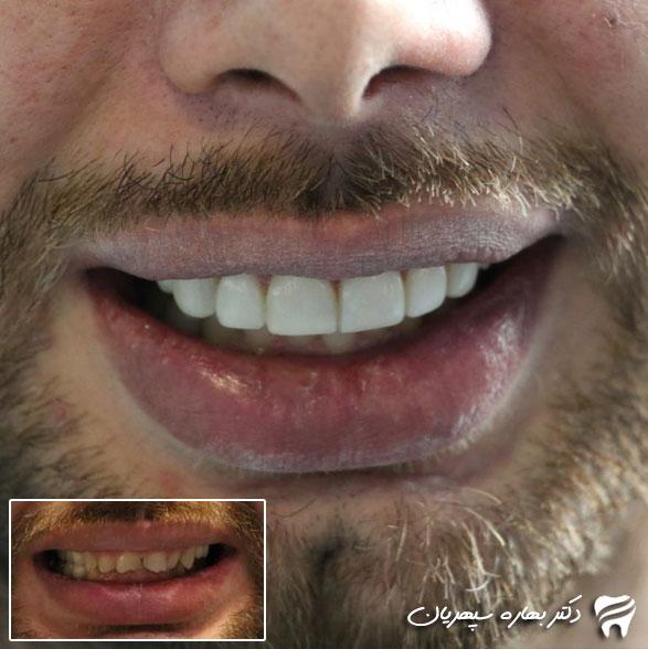 روش کار لمینت دندان